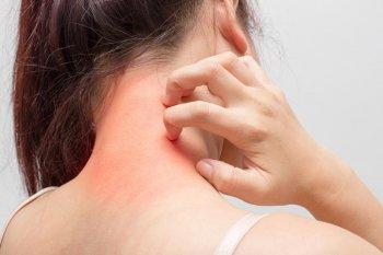 Нафталанолечение в дерматологии